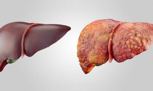 Hai bệnh nhi xơ gan giai đoạn cuối được hồi sinh nhờ ghép gan tại Bệnh viện Nhi TW