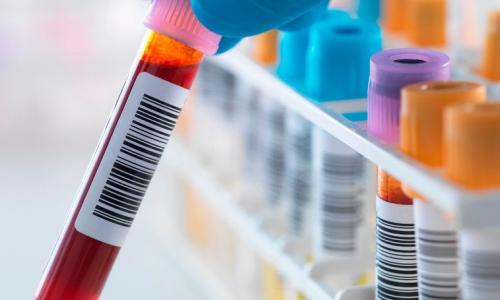 Máu nhân tạo: Nguồn cung máu vô tận tương lai?
