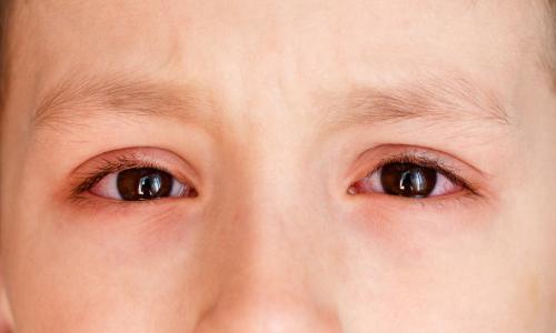 Đau mắt đỏ không thể coi thường