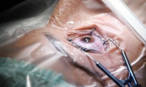 Phẫu thuật đục thể thủy tinh, cần lưu ý gì?