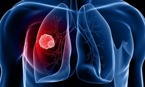 Ung thư phổi gây khó thở, cần làm gì?