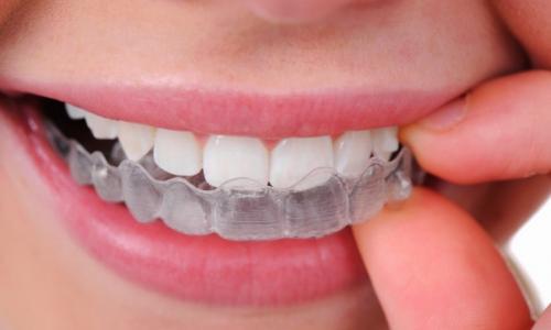Dinh dưỡng cho răng trắng khỏe