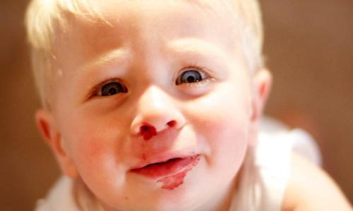 Nên và không nên làm gì khi trẻ chảy máu cam?