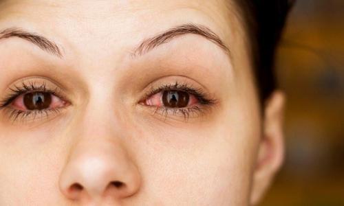 Đề phòng khô mắt do thuốc