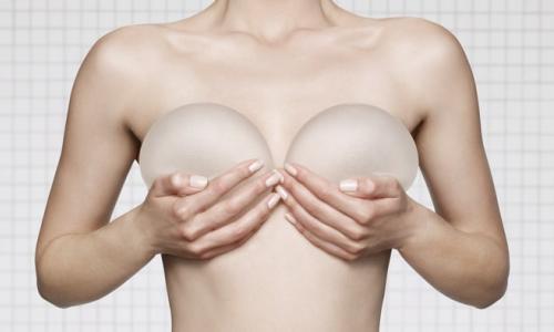 Những điều cần biết về túi nâng ngực
