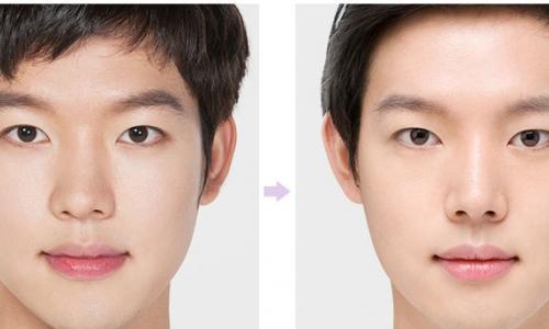 Nâng mũi thẩm mỹ như thế nào được cho là đẹp?