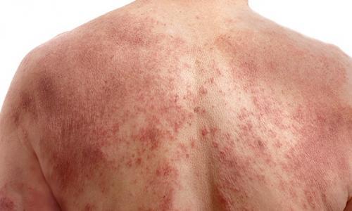 Chuyên gia bày cách hết ngứa ngáy do bệnh viêm da cơ địa