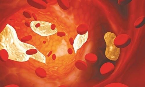 Tăng mỡ máu có làm giảm ham muốn?