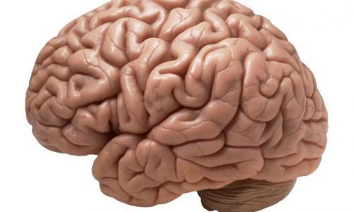 Bệnh nhân nhồi máu não