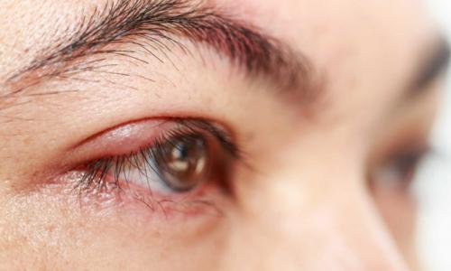 Chọn thuốc nào chữa dị ứng ở mắt?