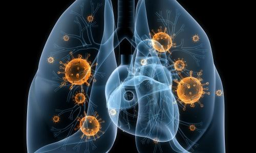 Cảnh giác với lạnh kéo dài dễ bị viêm phổi