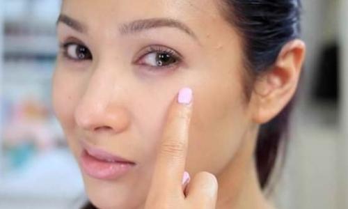 Quầng thâm mắt - nguyên nhân và cách khắc phục