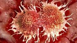 Dùng tinh trùng để chữa ung thư?
