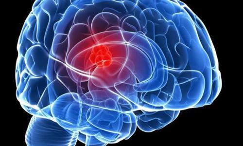 Bệnh viện K: Cứu bệnh nhân bị u não