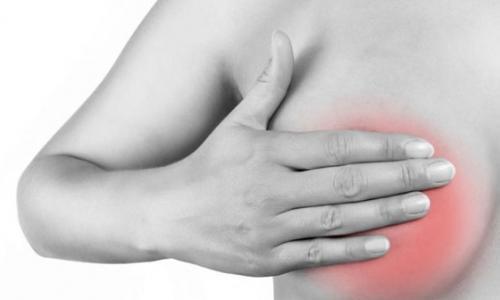 Ngực chảy mủ vì chữa tắc tuyến sữa bằng đắp lá, được bác sĩ chữa bằng chiếu tia plasma
