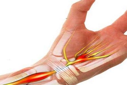 Hội chứng ống cổ tay, cần phát hiện sớm