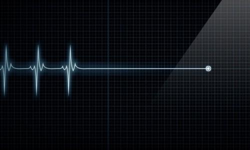 Cứu sống bệnh nhân bị ngưng tim do hội chứng Brugada