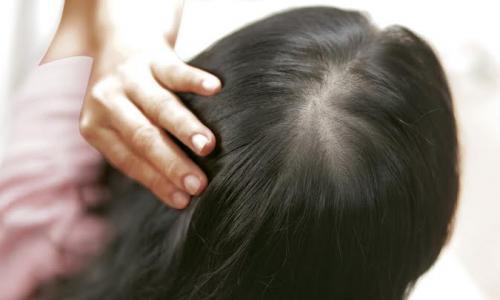 """""""Tế bào mầm tóc"""" mang hy vọng mới cho người thưa tóc, hói đầu"""
