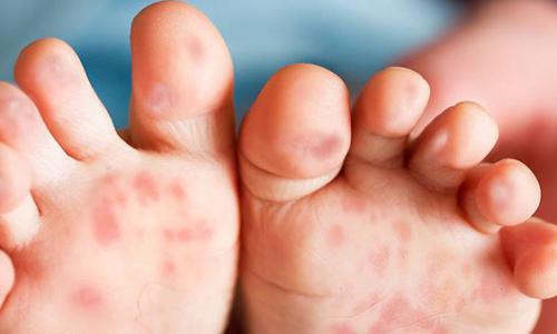 Mắc tay chân miệng, bé càng đau càng dễ biến chứng