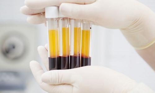 Lần đầu tiên thực hiện thành công thay huyết tương cứu sống bệnh nhân nhược cơ nặng
