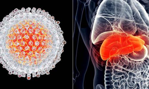 Báo động 10.000 ca ung thư gan mới mỗi năm, rất nhiều người có uống rượu bia