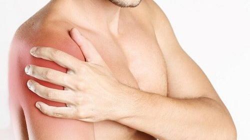 Ôn châm cứu điều trị viêm quanh khớp vai