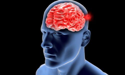 Nói khó, yếu nửa người bệnh nhân hồi phục nhờ được can thiệp mạch não kịp thời