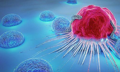 Nguy cơ mắc ung thư ở nữ tuổi trung niên