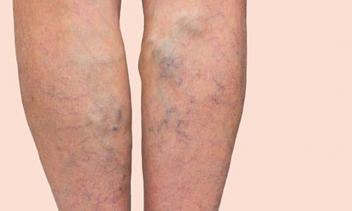Statin có thể giảm cục máu đông trong tĩnh mạch?