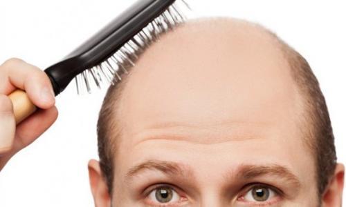 Thưa tóc, hói đầu: Tóc mọc khỏe trở lại từ tế bào mầm tóc