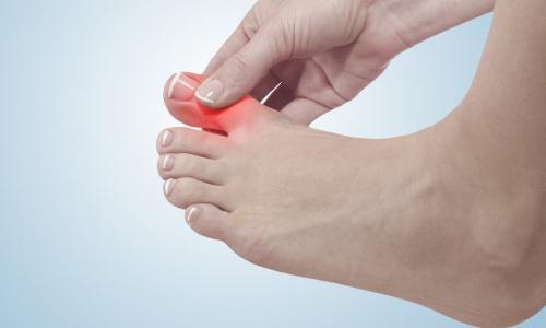 Rùng mình với bàn chân bệnh nhân bị biến dạng khớp vì bệnh Gout