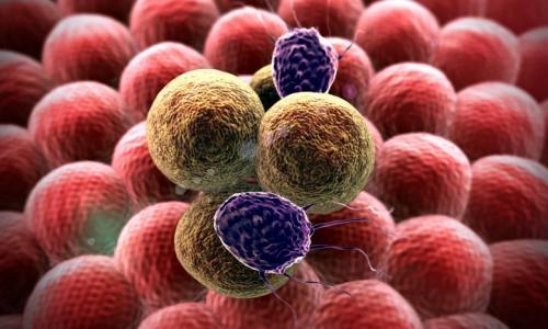 Dấu hiệu sớm phát hiện căn bệnh ung thư