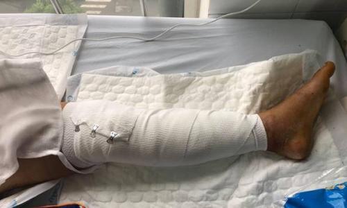 Hoảng hồn thanh niên bị cả giàn bê tông đổ vào người, nguy cơ phải cắt cụt tay chân